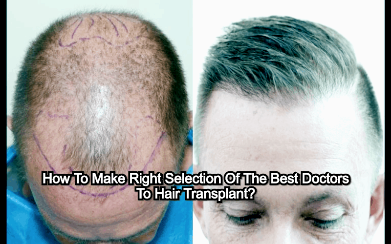 How To Make The Right Selection Of Best Doctors To Hair Transplant?